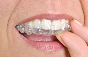 Woman wearing invisible braces image