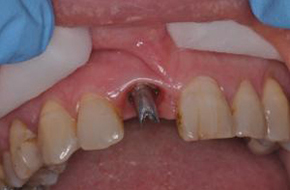 Dental Implants in Maidstone