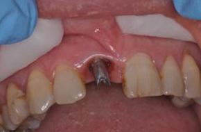 Dental Implants in Maidstone
