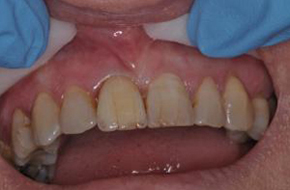 dental implant in maidstone