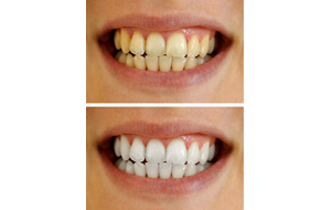 Teeth Whitening Maidstone Kent