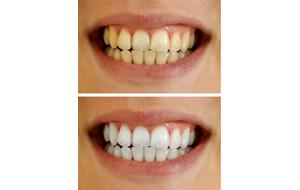 Teeth Whitening Maidstone Kent