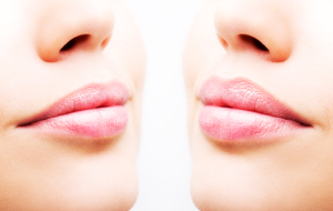 Before and after lip filler injections. Lips closeup over white