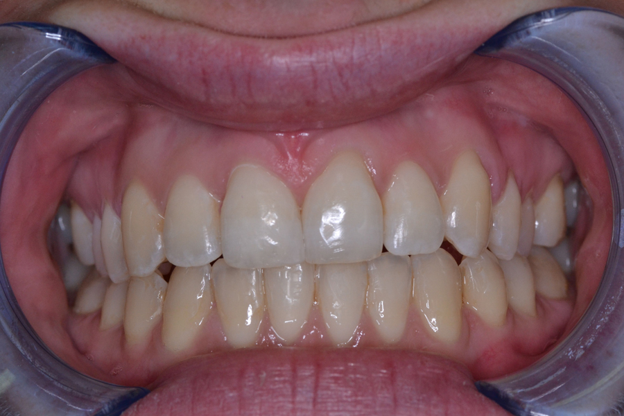 TP after treatment