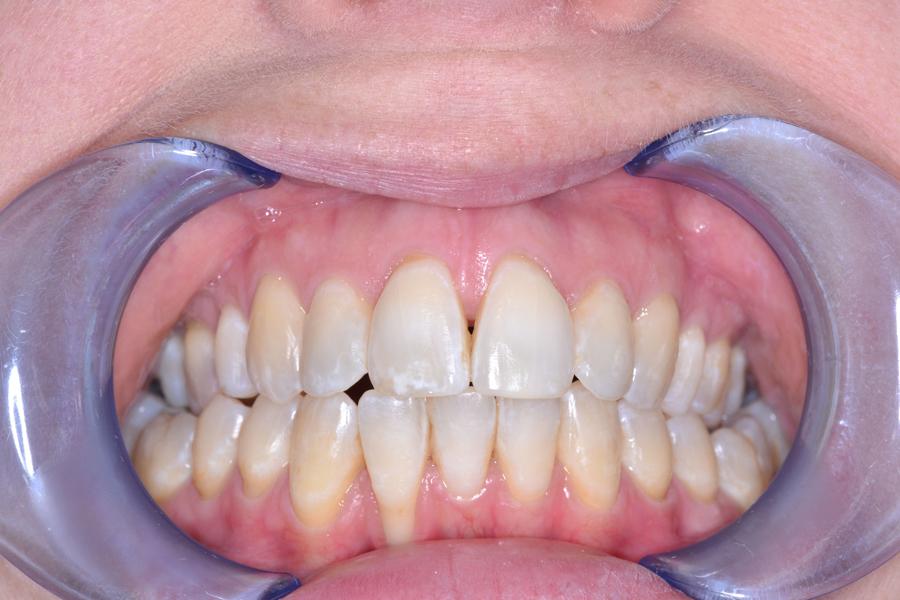 cfast teeth straightening after