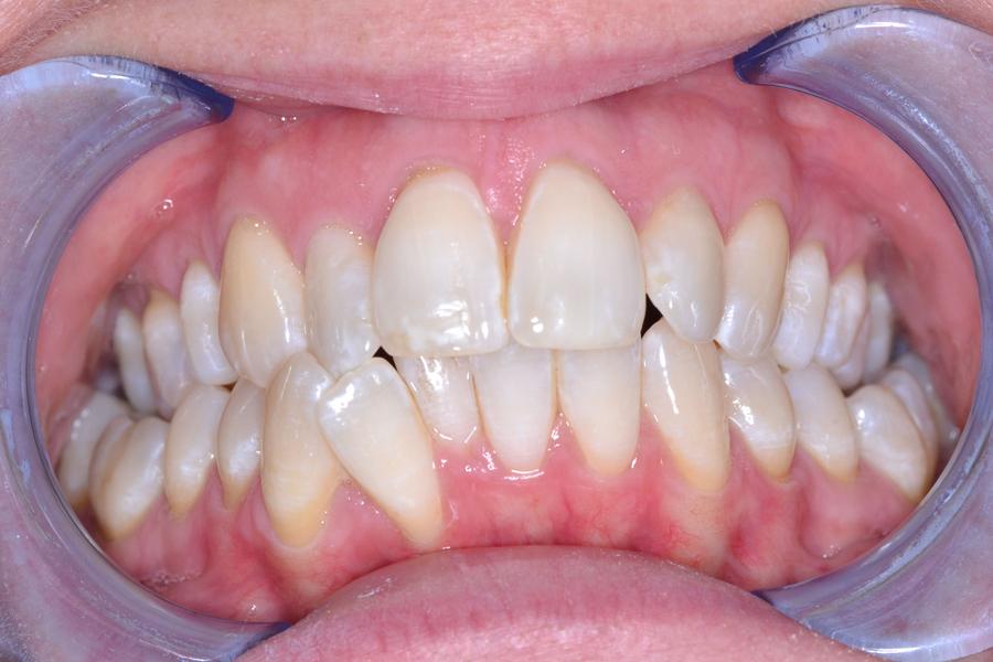 cfast teeth straightening before