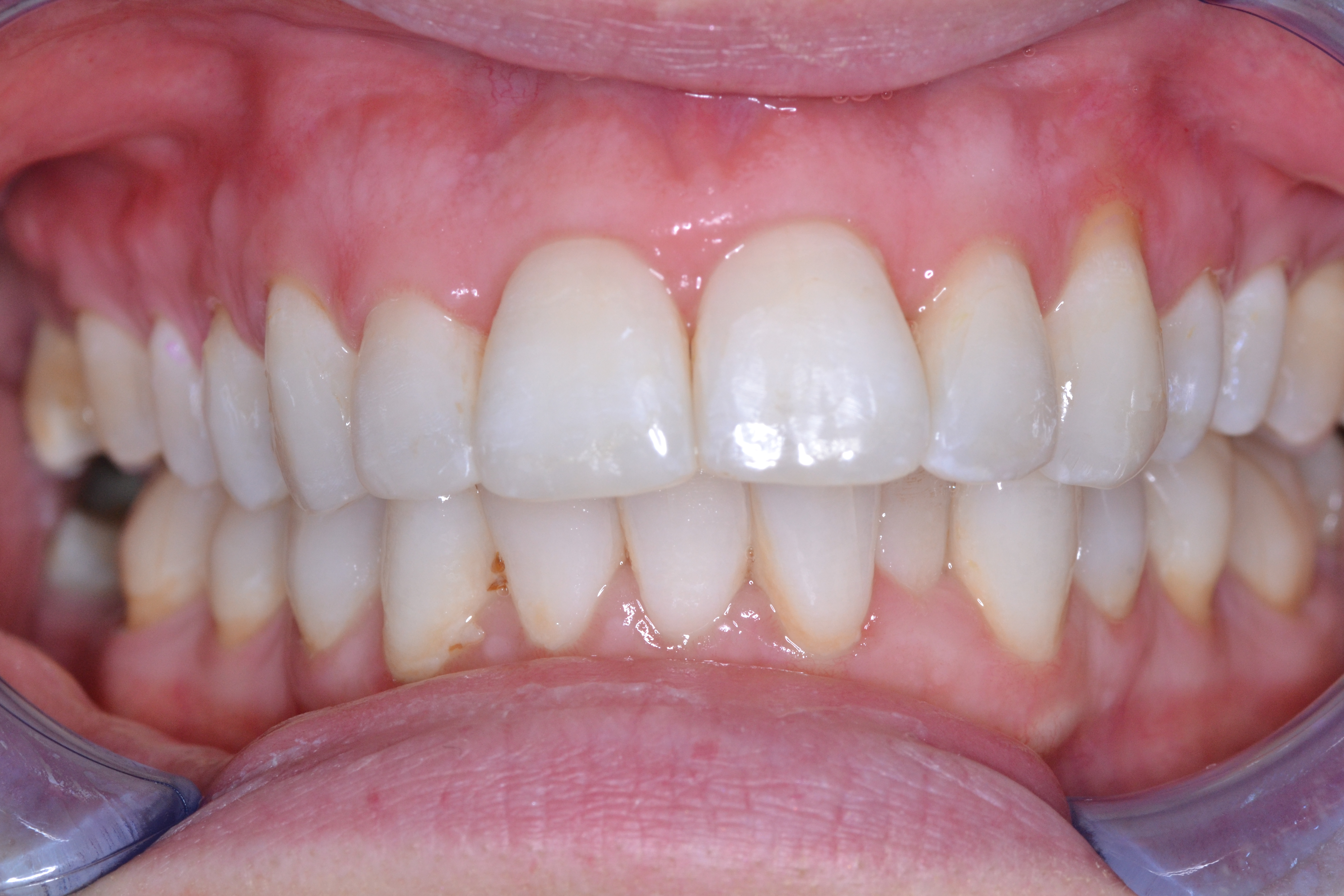 clear aligners after case 2