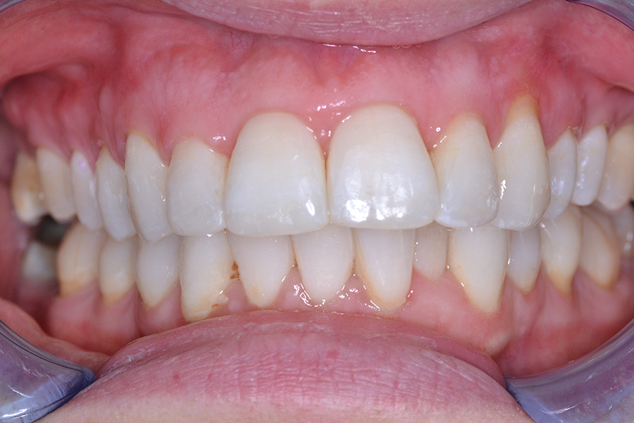 clear aligners after treatment