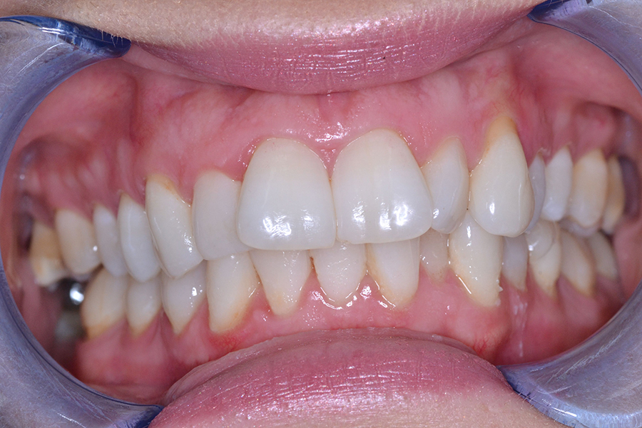 clear aligners before treatment