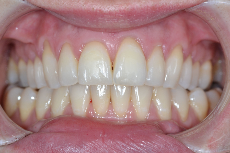 clear aligners after treatment case