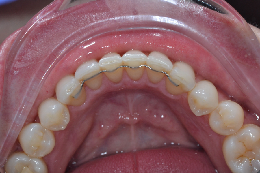 clear aligners after treatment lower teeth