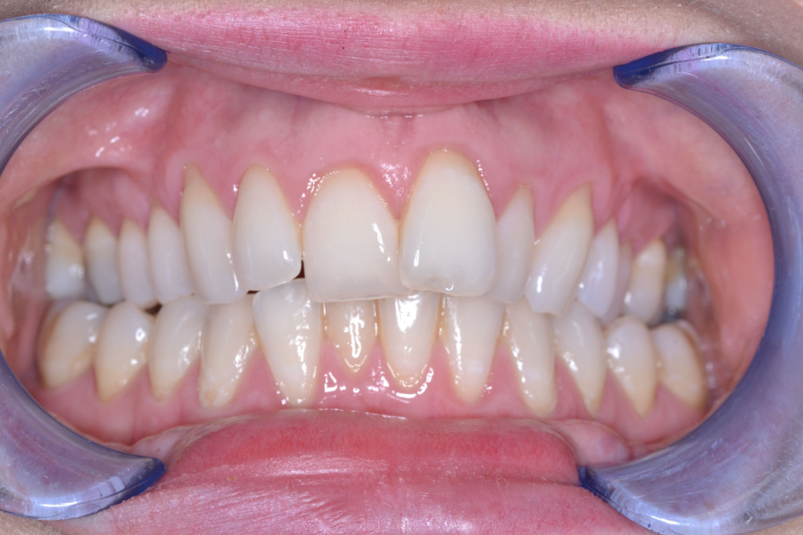 clear aligners before treatment case