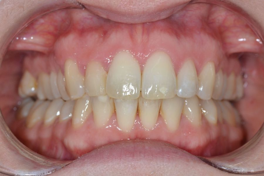 clear-aligners-01-after