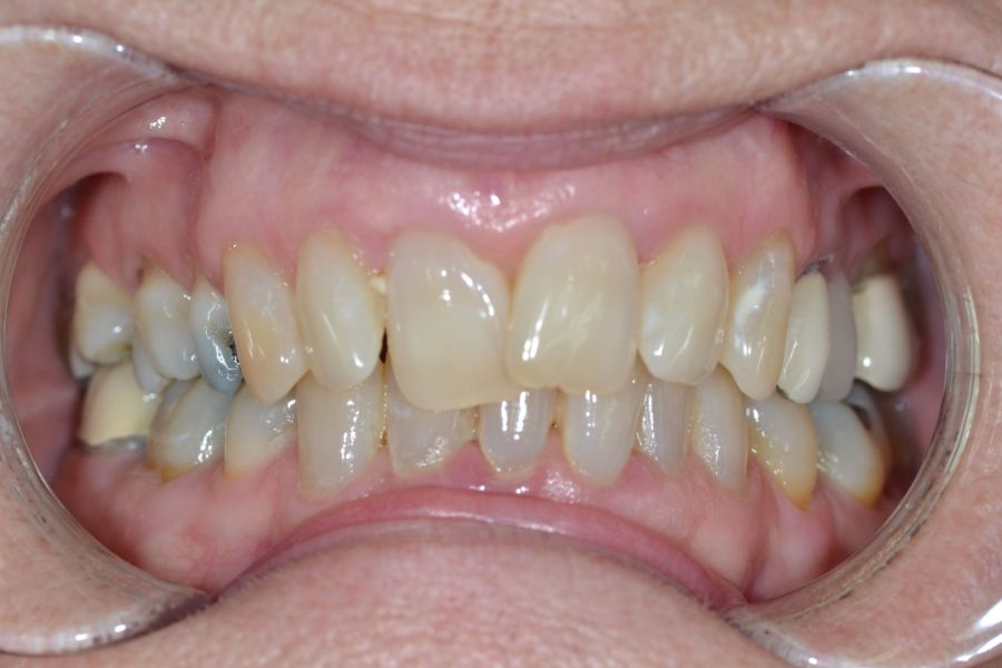 clear-aligners-01-before