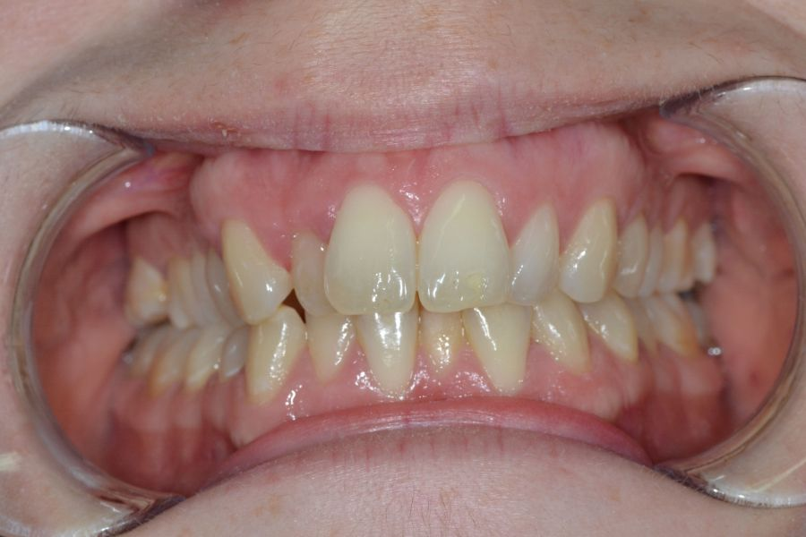 clear-aligners-04-after