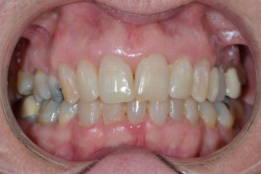 clear-aligners-04-before